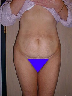 Smoker Before Tummy Tuck
