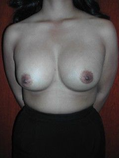 Six Years Following Cosmetic Breast Surgery