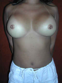 Two Years Following Cosmetic Breast Surgery