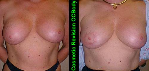 Before and Two Months after Repair of Cosmetic Breast Implant Case