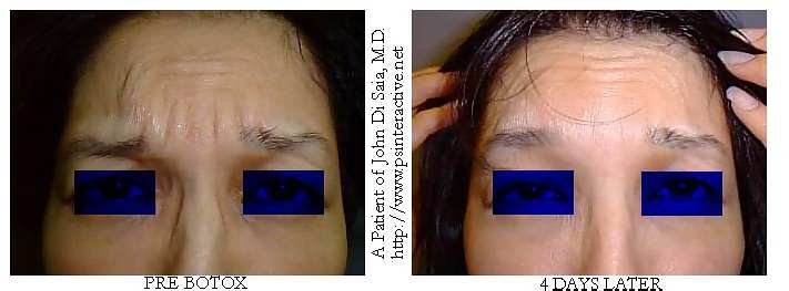 One of Dr Di Saia's BOTOX Patients before and after Botox treatment