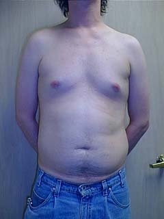 Man Before Belly Liposuction