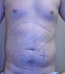 Man Marked Before Belly Liposuction