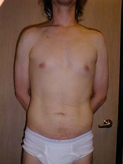 Man 2 Months After Belly Liposuction