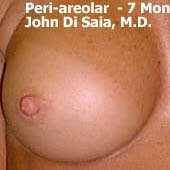 periareolar breast augmentation patient 1