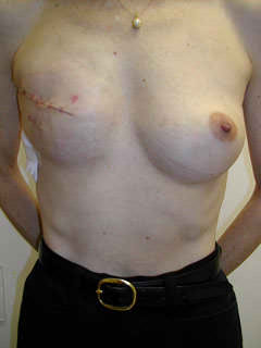 2 Weeks After Mastectomy and Placement Tissue Expander