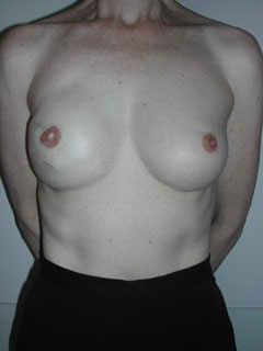 1 Month After Stage III Nipple Reconstruction