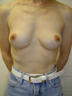 Patient before Mastectomy for Breast Cancer