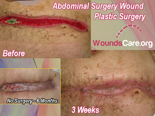 surgical wound plastic surgery before after