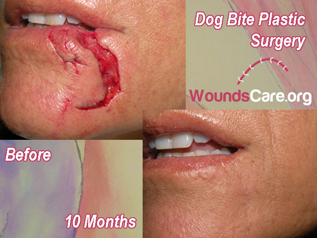 dog bite plastic surgery before after